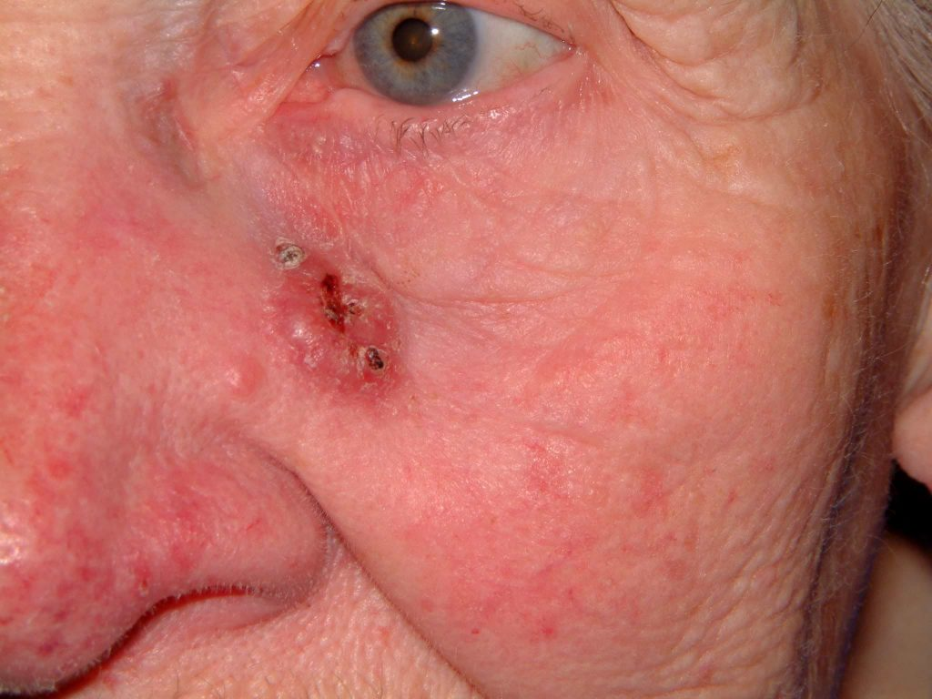 Basal Cell Carcinoma Skin Cancer left cheek - Cosmetic Surgeon Christopher Stone