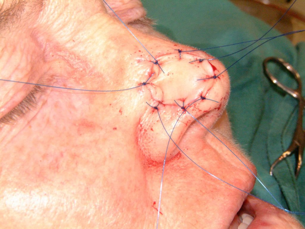 Full thickness graft inset - Cosmetic Surgeon Christopher Stone