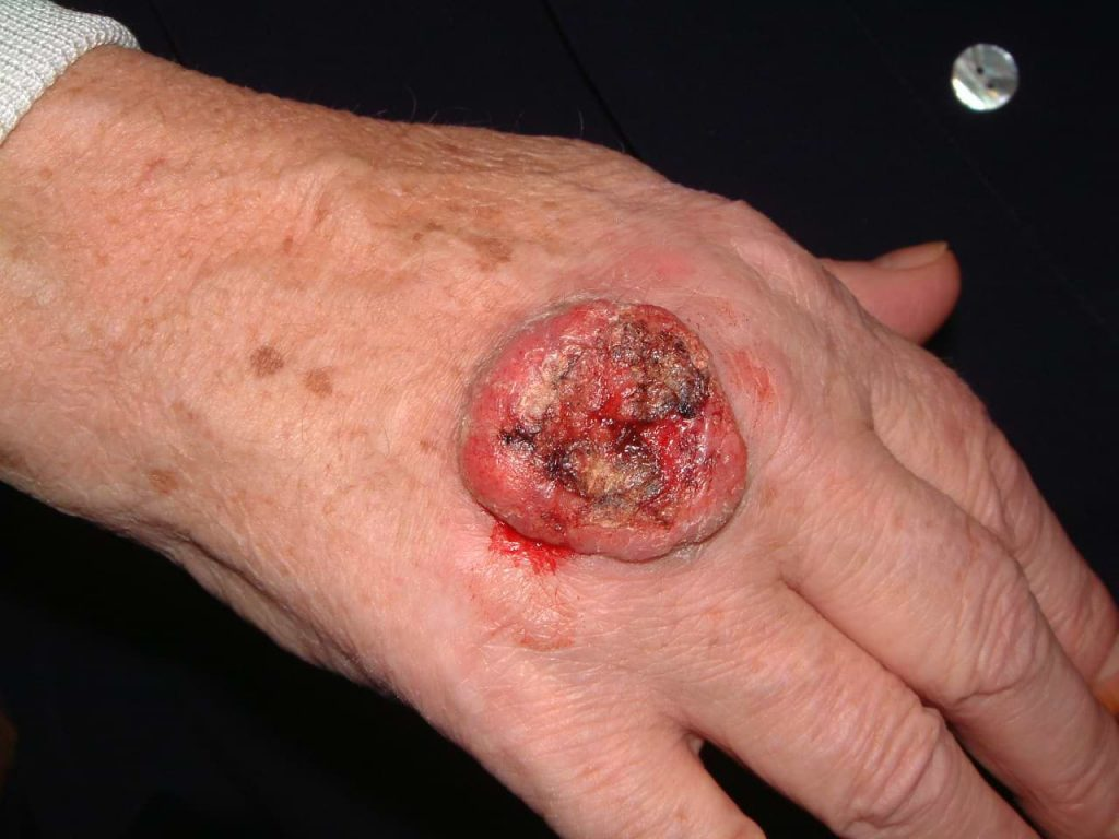Hand Squamous Cell Carcinoma - Cosmetic Surgeon Christopher Stone