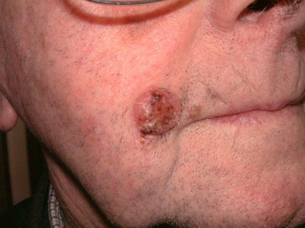Keratoacanthoma - Cosmetic Surgeon Christopher Stone