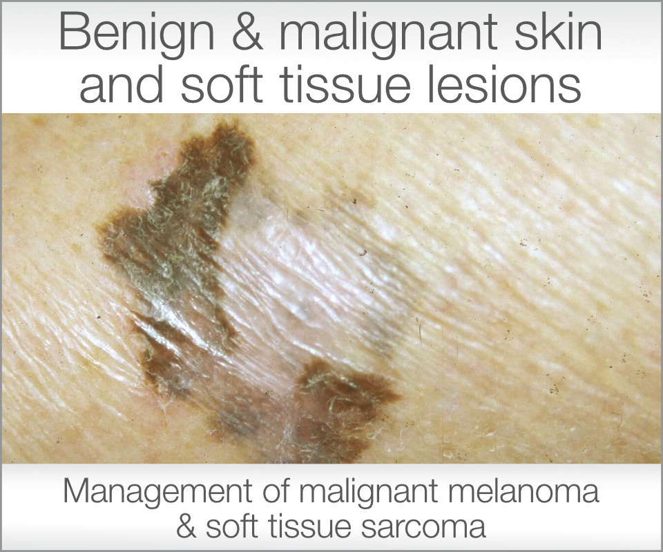 Link to Mr Stone's Skin Lesions for malignant melanoma & soft tissue sarcoma information